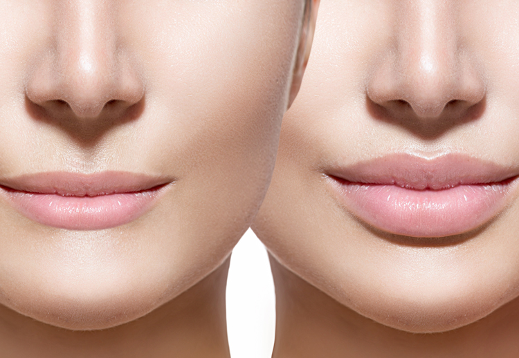 Image of the before and after photo for lip injections