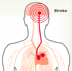 stroke_graphic