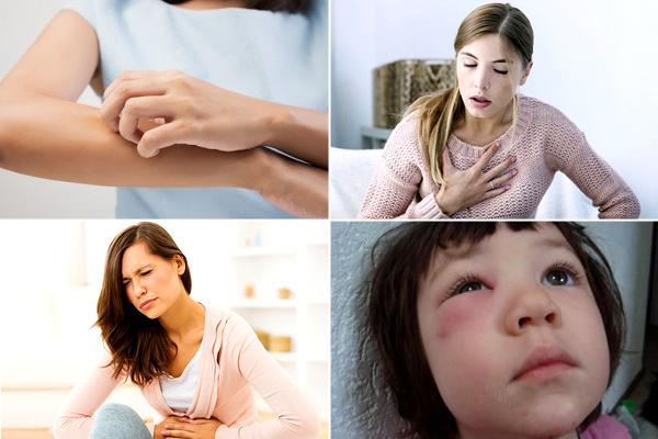 Аллергия на овсянку у взрослых — Все про аллергию
