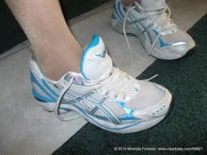 shoe allergy