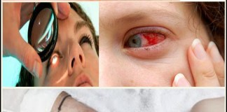 To get rid of eye floaters at home