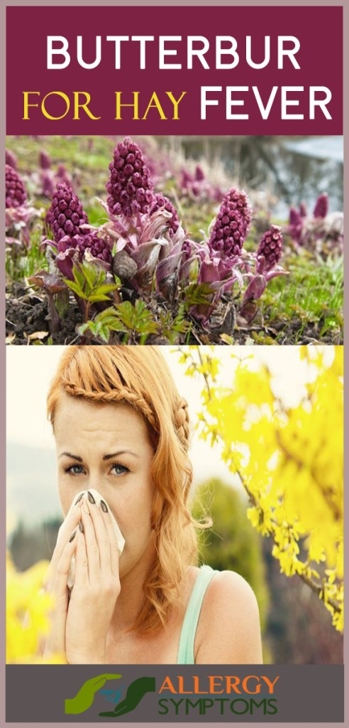 butterbur for hay fever