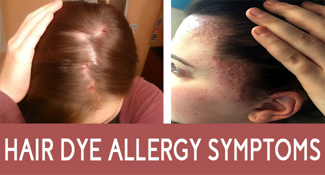 Hair Dye Allergy Symptoms - Allergy-symptoms.org