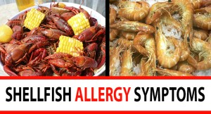 Shellfish Allergy Symptoms FB