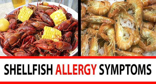 Shellfish Allergy Symptoms Amp Diagnosis Allergy Symptoms Org