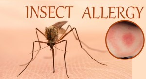 Insect Allergy FB