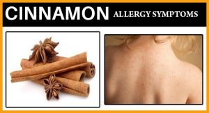 Cinnamon Allergy Symptoms FB