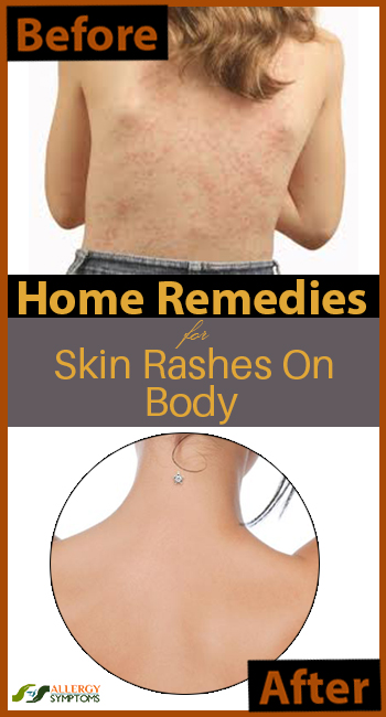Home Remedies for Skin Rashes on Body