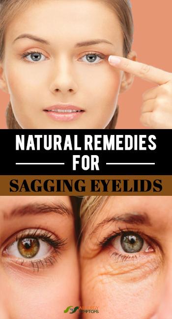 Natural Remedies for Sagging Eyelids