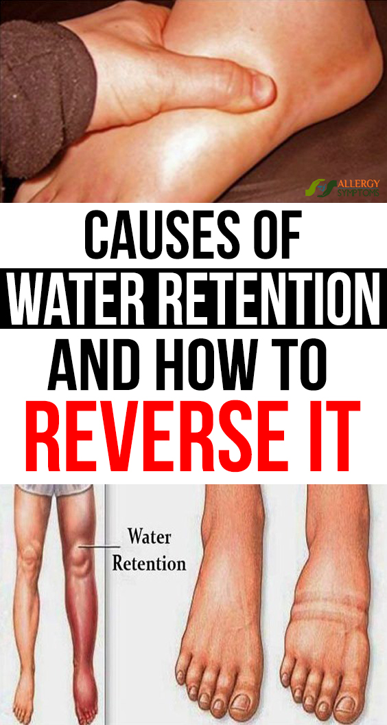 Causes of Water Retention and How to Reverse It