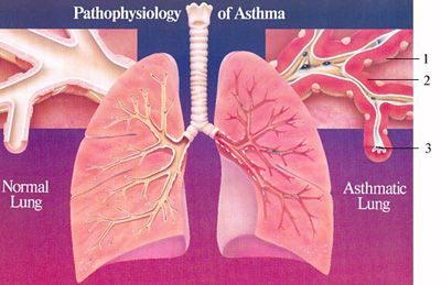 What Causes Asthma -Adult & Pediatric Allergy Associates P.C.Top ...