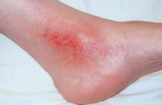 stasis dermatitis.jpg