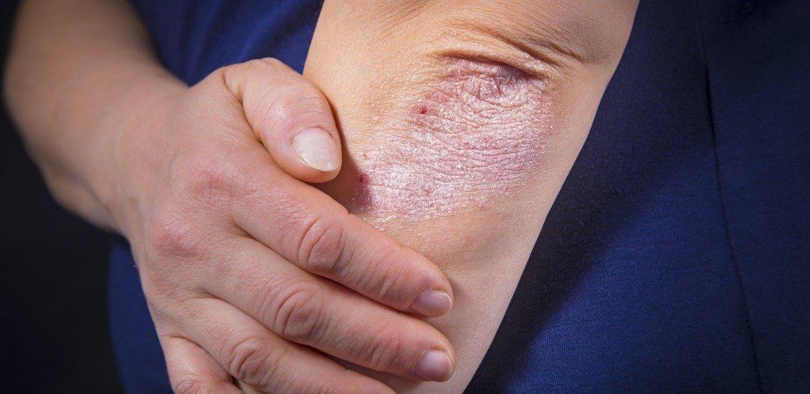 Debunking misconceptions about psoriasis