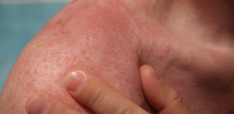 Understanding Sun Allergy