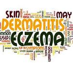 Does Xolair Work for Eczema?