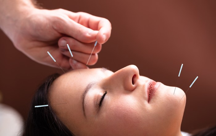 acupuncture for migraine headaches, alleviant health centers of San Diego, Dr. Green, holistic psychiatry