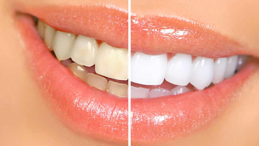Natural Ways To Whiten Your Teeth With Home Remedies