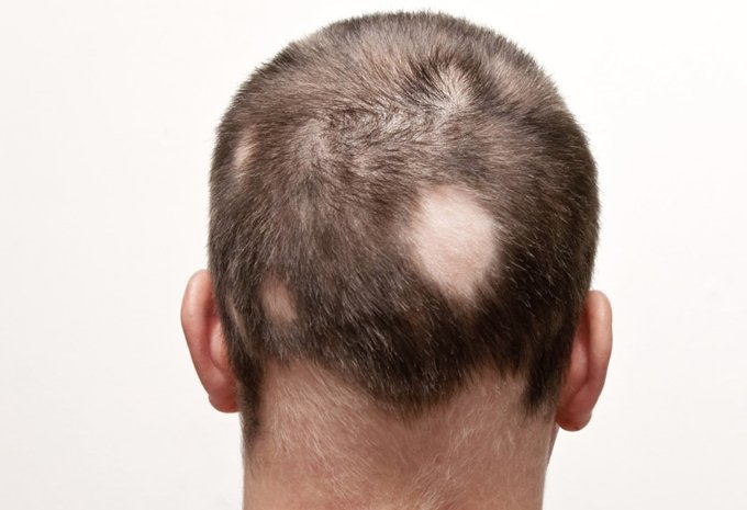alopecia areata, condition that causes hair to fall out in