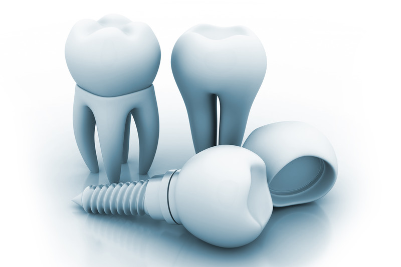 How Exactly Do Dental Implants Work?