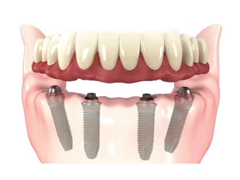 Implant Supported Dentures - All On Four