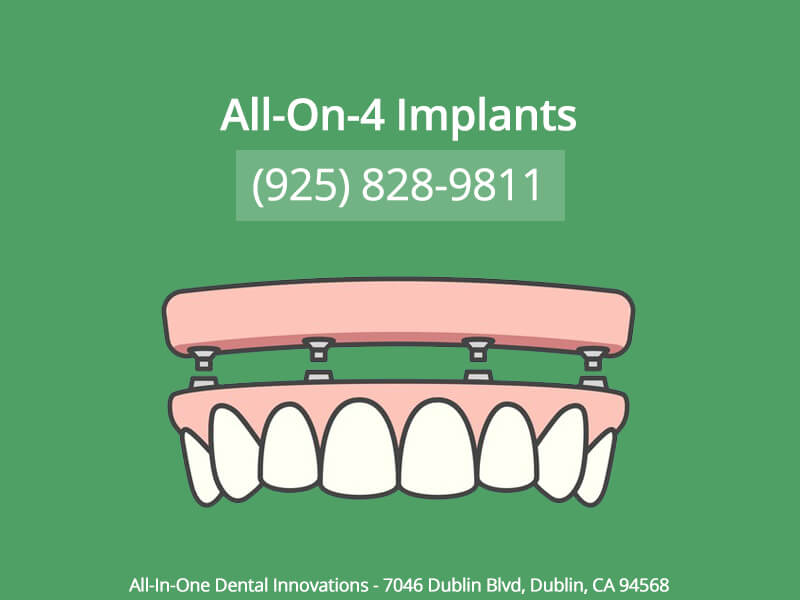All-On-4 Implants In Dublin CA