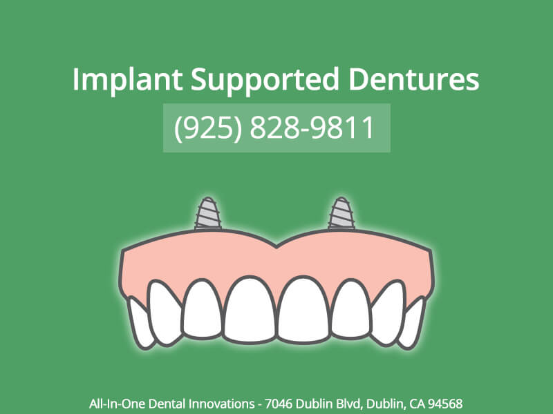 Implant Supported Dentures in Dublin