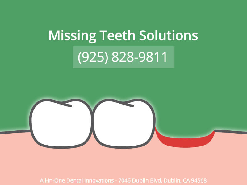 Missing Teeth Solutions In Dublin