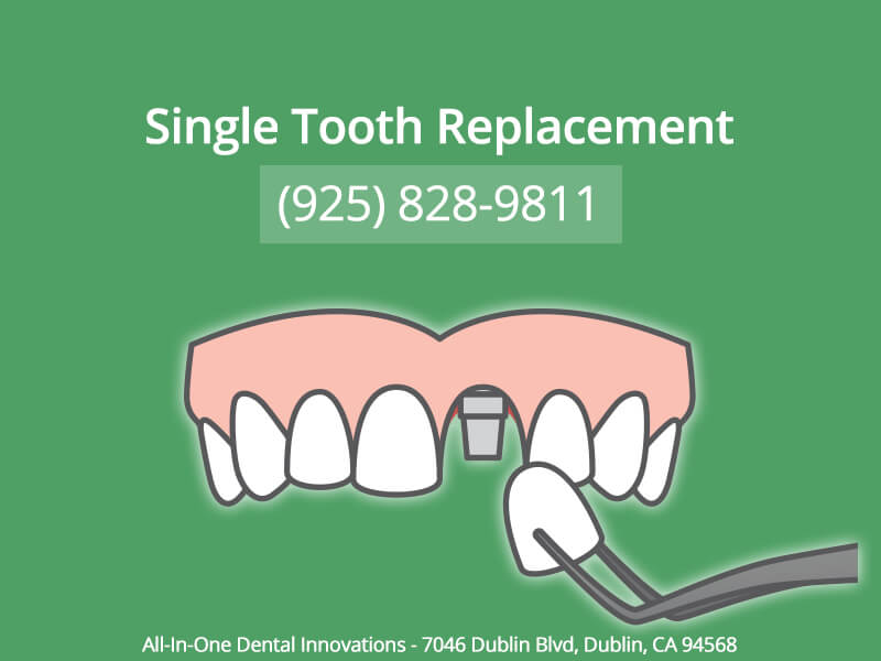 Single Tooth Replacement In Dublin CA