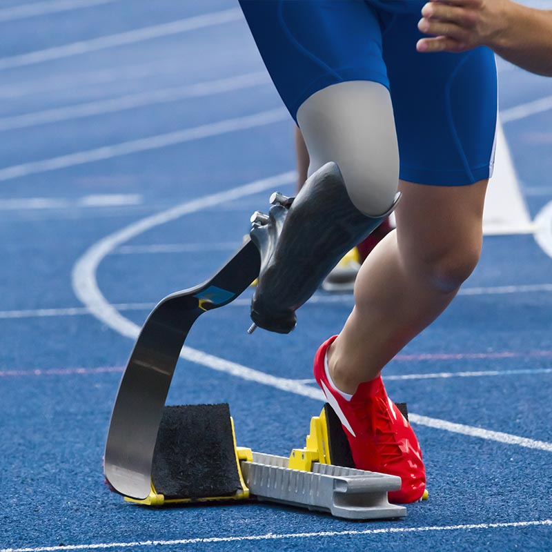 Leg amputee participating in track
