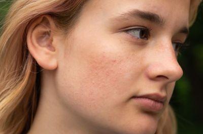 عصير المورينزي يساعد في ازالة حبوب الوجه وتفتيح البشرة