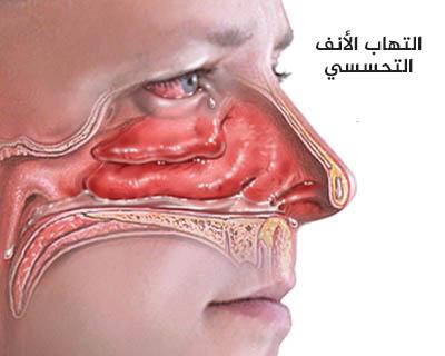التهاب الأنف التحسسي