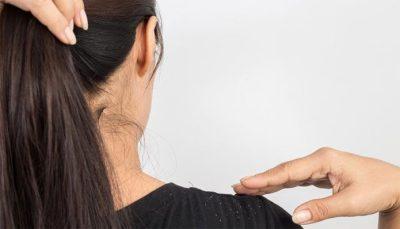 زيت جوز الهند يمنع تساقط الشعر