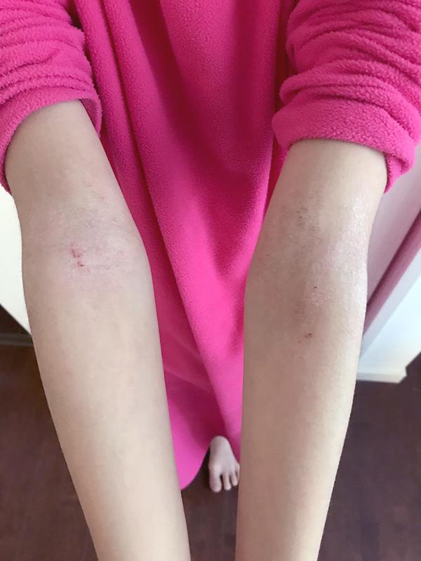 脱保湿脱ステロイドをして2年4ヶ月経った腕の肌状態