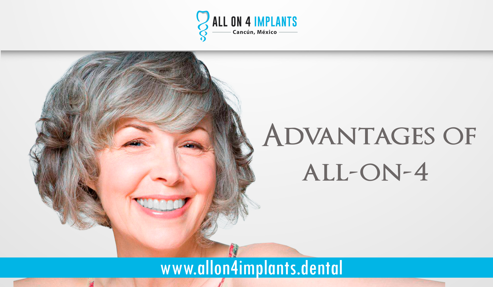 Advantages of All on 4 Dental Implants in Cancun
