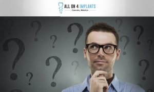 Frequently Asked Questions for All-on-4 dental implants in Cancun