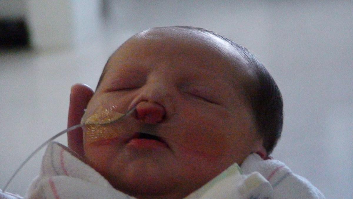 cleft palate feeding tube