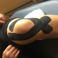 Knee-taping-ACl-PCL