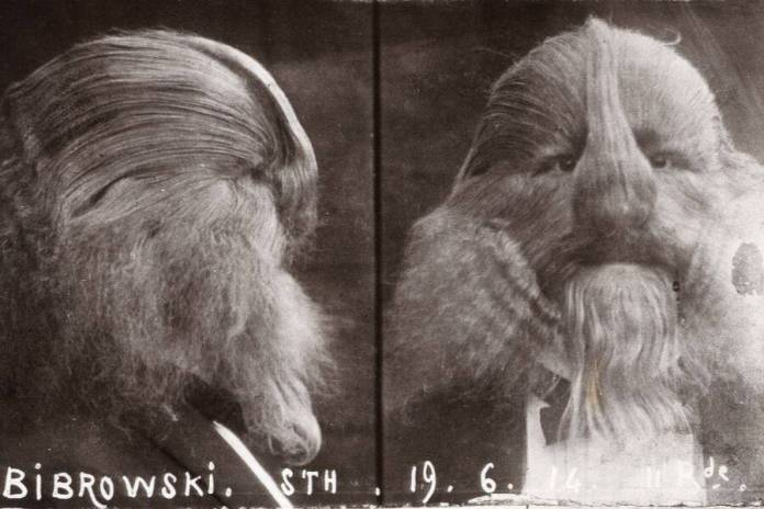 Stephan Bibrowski, A Sideshow Performer Known As The 'Lion-Faced Man'