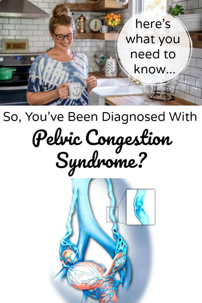 So, You've Been Diagnosed With Pelvic Congestion Syndrome? (here's what you need to know)