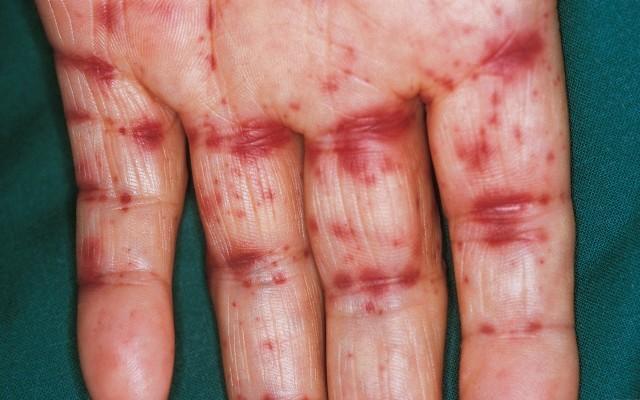 Гем васкулит мкб 10. Геморрагический васкулит