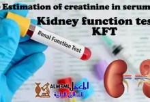 Photo of Estimation of creatinine in serum – Kidney function tests