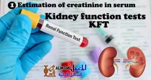 Estimation-of-creatinine-in-serum (1)