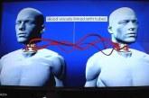 """سابقة علمية… إجراء أول عملية """"ناجحة"""" لزراعة رأس جثة بشرية"""