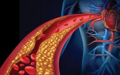 أشرف رضا: الكولسترول مادة مهمة لجسم الإنسان