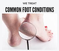 we-treat-common-foot-problems
