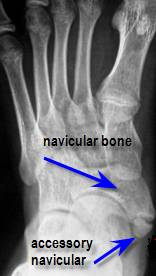8cbc842c571 What is an Accessory Navicular Syndrome  - Almawi Limited The ...