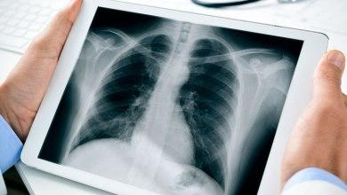 Photo of مراكش: تقنيو الأشعة بمستشفى إبن زهر يشتكون
