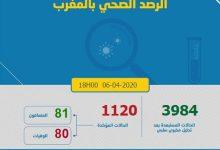 Photo of كورونا-المغرب.. تسجيل 3984 حالة مستبعدة والعدد الإجمالي للوفيات بلغ 80 حالة