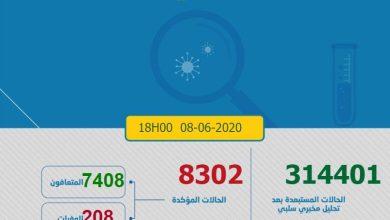 Photo of كورونا-المغرب .. 78 إصابة مؤكدة ترفع إجمالي الحالات إلى 8302