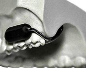 مخيف! الجيش الأمريكي يطوّر ميكرفون عالي السرية يوضع في الأسنان